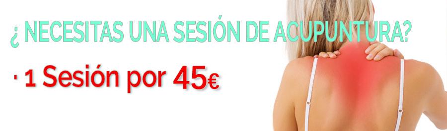 Acupuntura Sevilla, primera Sesión por 15€